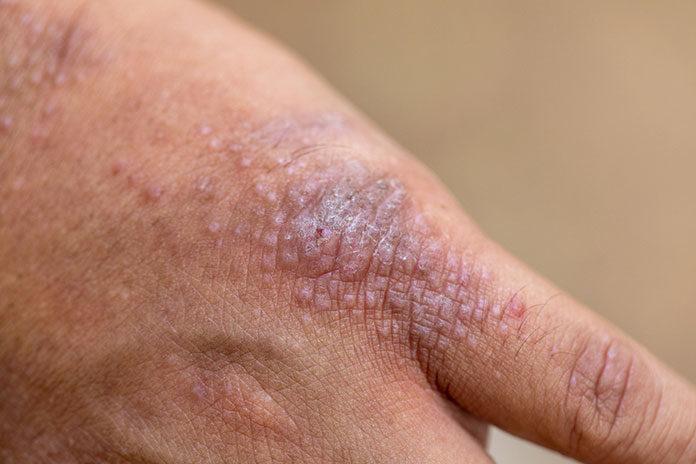 Efektywnie działający krem na atopowe zapalenie skóry